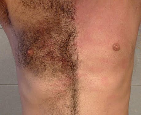 human body parts chest hair